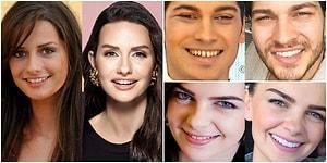 Kimisi Muhteşem Olmuş, Kimisine Çok da Gerek Yokmuş: Dişlerini Yaptırdıktan Sonra Tüm İfadesi Değişen 15 Ünlü İsim