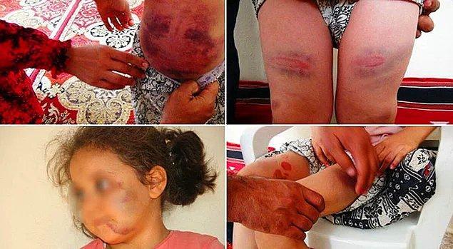 2. Eşine öfkelenen adamın çocuklarına işkence edip şiddet uygulaması...