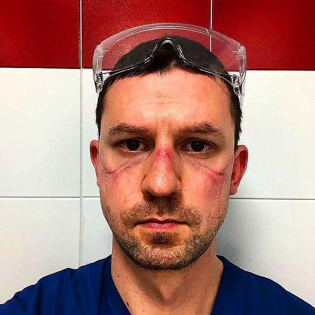 Çoğu insanın 10 dakika takmaya bile tahammül edemediği maskeyi koronavirüsle mücadelede en önde savaşan sağlık çalışanları saatlerce takmak zorunda.