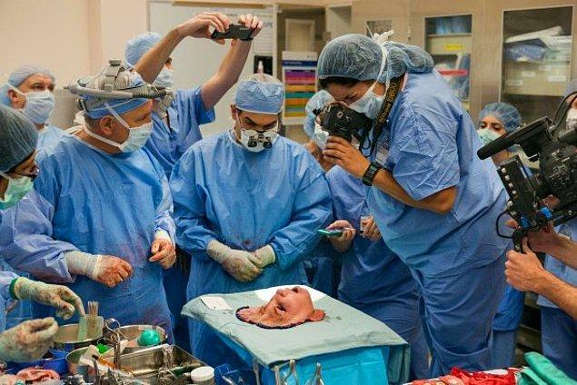 14. Masadaki bir maket değil. Gerçek bir yüz, nakil ameliyatından önce fotoğraflanıyor.