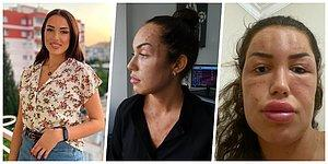 Yüzüne ve Boynuna 200 İğne Yaptılar: 'Gençlik Aşısı' Yaptıran Kadının Yüzü Tanınmaz Hale Geldi