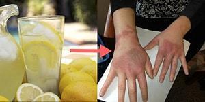 Basit Yollarla Bulaşabilen Enfeksiyonların Neden Olduğu İnsanı Şoka Uğratan Görüntüler