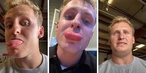 Pişmiş Tavuğun Başına Gelmeyen Onun Başına Geldi: Burger Yerken Dilini Arı Sokan Adamın Dramı