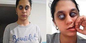 Ümran Yardım Bekliyor: Doğuştan Yaşadığı Göz Problemi Sebebiyle Göremiyor