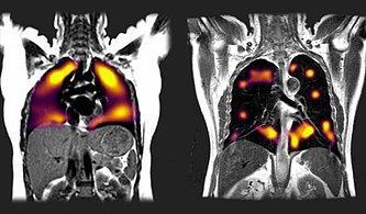 Yeni Tarama Tekniği, Koronavirüsün Akciğerlerde Neden olduğu Hasarı 'Gösterdi'