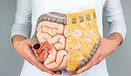 Neslihan Atagül İle Gündeme Gelmişti: Geçirgen Bağırsak Sendromu Nedir? Belirtileri Nelerdir?