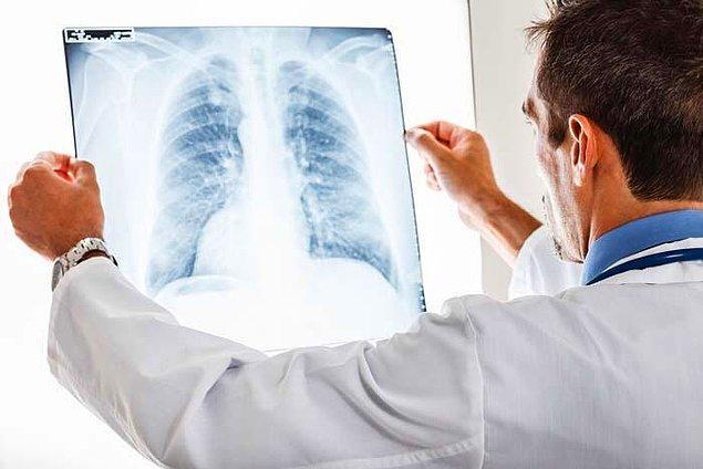 'Sigara içenler ölmüyor' diye yanlış bir algıya kapılıyorlar