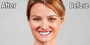 Hep İstediğiniz Yaşta Kalın: Botoks ve Dolgu İşlemleriyle İlgili Bilinmesi Gereken Her Şey