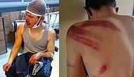 200 Lira Alacağını İsteyen Genci Saatlerce Döven Patron Tutuklandı