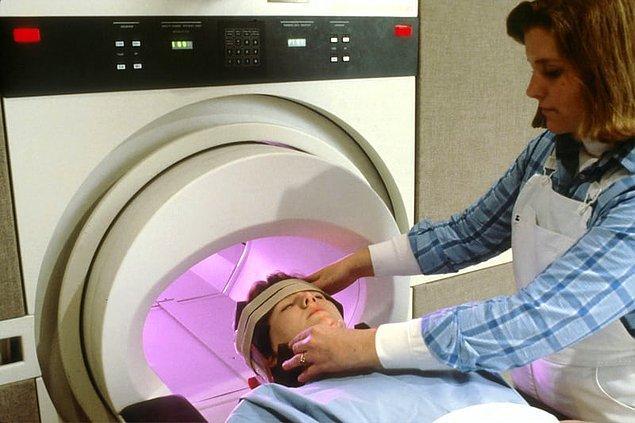 Cerrahlar, ikizlerin beyinlerindeki kan akışını görüntülemek için damarlarına boya enjekte eder.