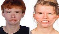 Doğuştan Gelen Bir Anormali Olan ve Kendini Yüz Felci Şeklinde Gösteren Poland-Möbius Sendromu Nedir?