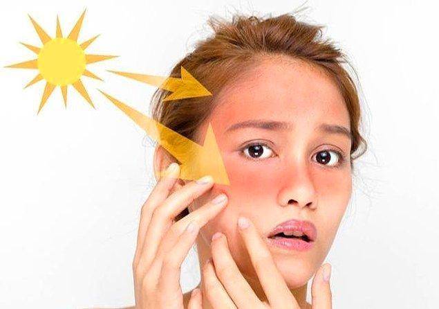 1. Güneşten neden korunmalıyız?