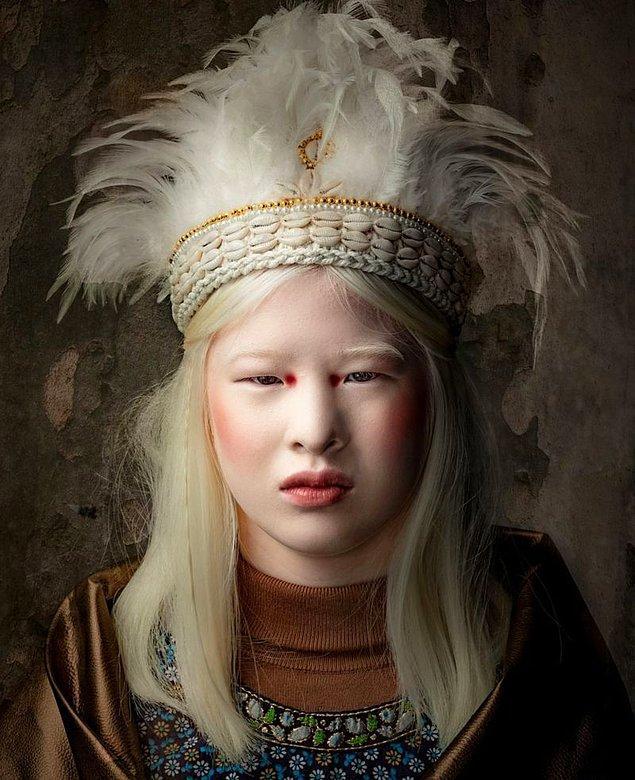 """""""Albinizm ne demek? Neden albino değil albinizm demeli?"""""""