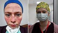 Seher Hemşire: 'O Kızarıklığı, Baskıyı Eve Gidince Yüzümde Bile Hissediyordum'