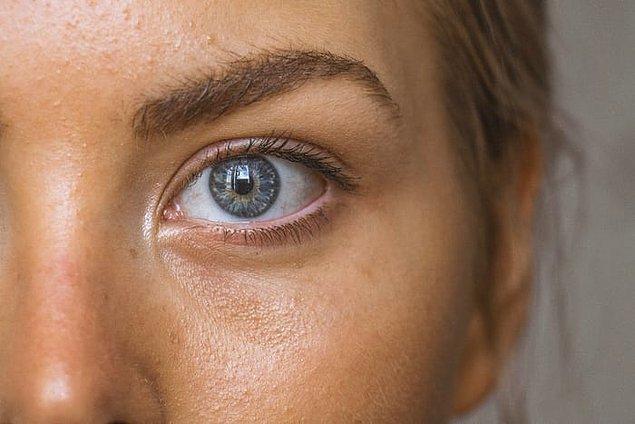 7. Gözlerimizin vücudumuzun bağışıklık sistemi haricinde kendine ait bir bağışıklık sistemi vardır.