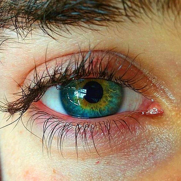 13. Göz küresi vücudumuzun en hızlı iyileşen kısmıdır.