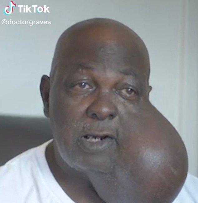 TikTok'ta bir doktor yüzünde dünyanın en büyük tümörlerinden biri olan bir hastanın ameliyatını yapacağını anlattığı bir video paylaştı.