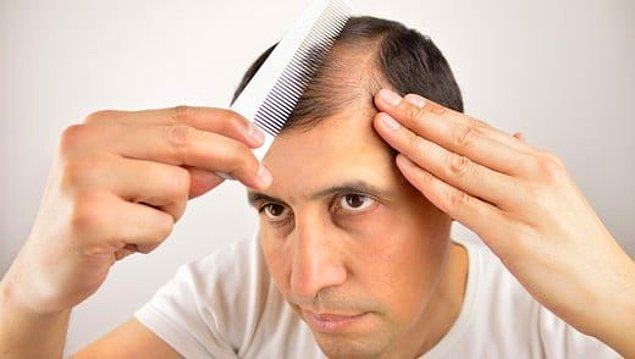 4. Saç dökülmesi sorununa saç kazıtmak doğru bir yöntem değil