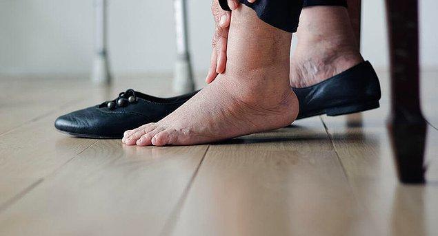 2. Ayaklarınız gün içinde çok şişiyorsa alışverişi şiş halindeyken yapın.