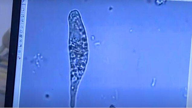 İlk etapta tek hücreliler açısından çalışmamızı tamamlamış durumdayız.
