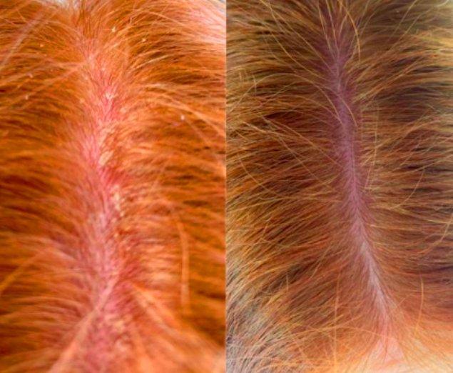 1. Şu pul görünümü en çok sinir bozan saç sorunlarından birisi.