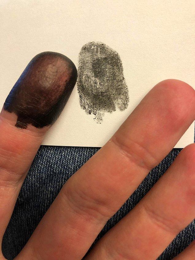 """5. """"Ellerimde veya ayaklarımda parmak izi olmadan doğdum."""""""