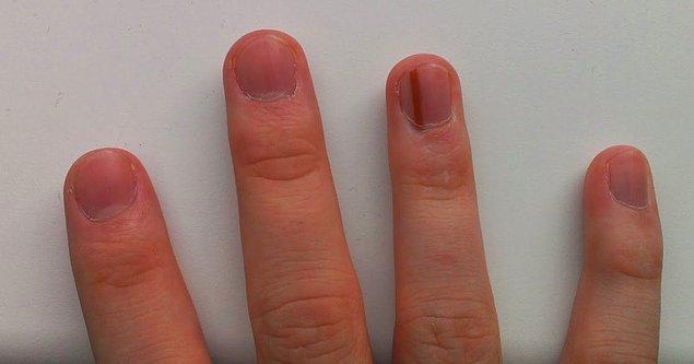 """13. """"Sağ yüzük parmağımdaki tırnağımın altında bir doğum lekesi var."""""""