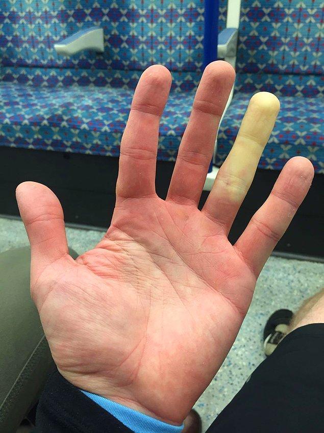 """15. """"Üşüdüğümde yüzük parmağım bembeyaz oluyor (iki elimde de aynı parmakta)."""""""