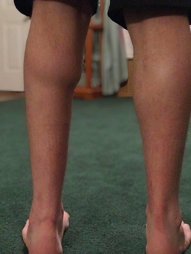 """16. """"Aşil tendonum koptuktan sonra bacaklarımın arasındaki fark."""""""