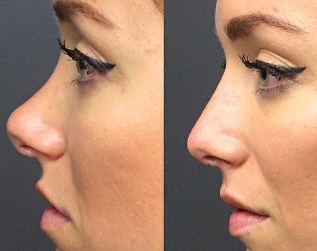 Estetik operasyonlarda kesinlikle tek bir güzellik algısı yok.