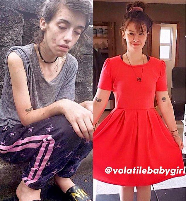 19. Bir kadının rehabilitasyondan önceki ve sonraki hali: