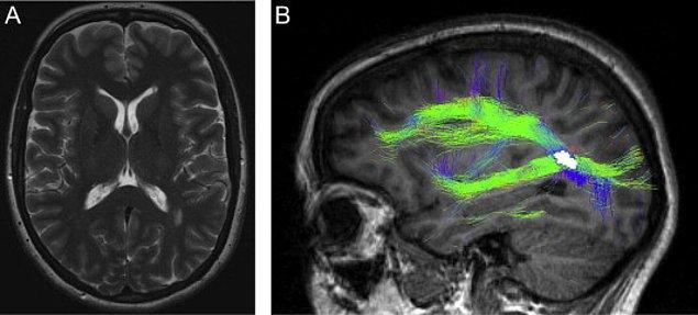 Bu sendrom, en çok kafa travması, beyin tümörü, MS hastalığı ve felç gibi nörolojik durumlardan kaynaklanıyor.
