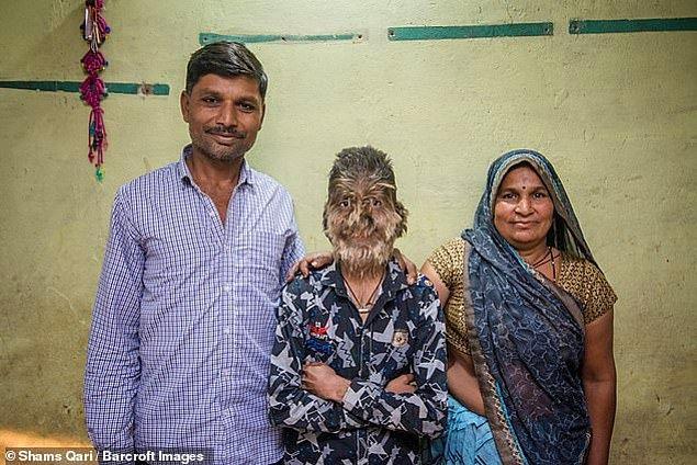 Hindistan'da yaşayan 13 yaşındaki Lalit Patidar, insanlar tarafından maymun olarak adlandırıldığını söyledi.