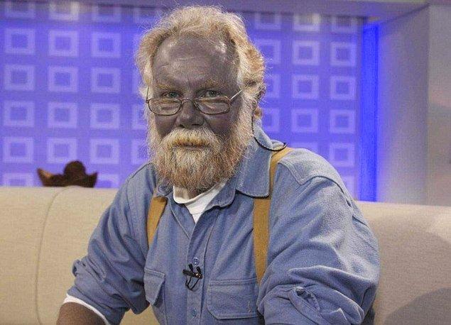 12. Arjiri (Mavi Ten Hastalığı)