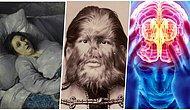 Gerçek Olduklarını Duyduğunuzda Sizi Hayrete Düşürecek Oldukça Nadir Olmasıyla Bilinen 13 Şaşırtıcı Hastalık