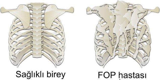 1. Fibrodysplasia Ossificans Progressiva (Taş Adam Sendromu/FOP)