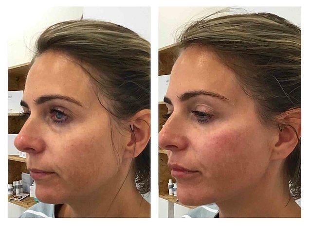 """Yüzün belli bölgelerine azar azar uygulanarak yüzü rahatlatan """"baby botox"""" uygulamasının dolgu versiyonu gibi düşünülebilir."""