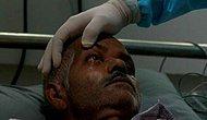 Göz Kaybına, Beyin Hasarına ve Hatta İnsanların Ölümüne Sebep Olan Kara Mantar Hastalığı