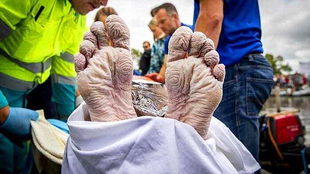 9. Hollanda Olimpik Yüzme Şampiyonu Maarten Van Der Weijden'in kanser farkındalığı için para biriktirmek amacıyla 55 saatte 163 kilometre yüzdükten sonra ayakları:
