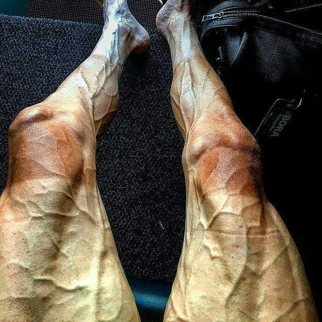 10. Profesyonel yarış bisikletçisi Paweł Poljański'nin Fransa Bisiklet Turu'nda 16 etap tamamladıktan sonra bacakları: