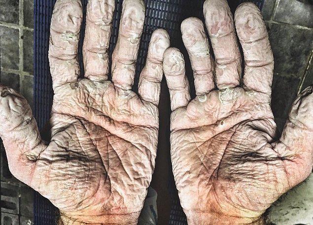 13. Olimpik kürekçi Alex Gregory'nin saatlerce ıslak eldiven giydikten sonra elleri: