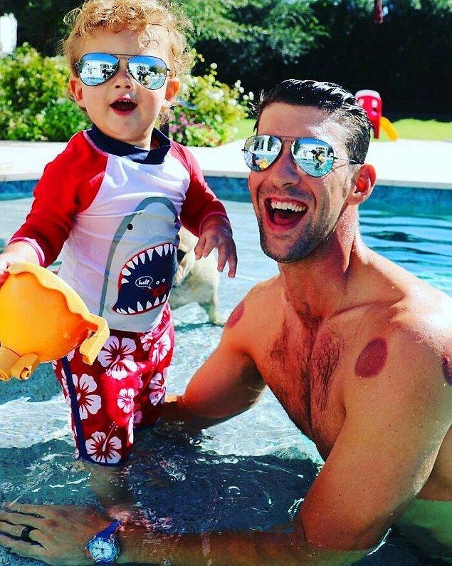 26. Kupa tedavisi alan ünlü yüzücü Michael Phelps: