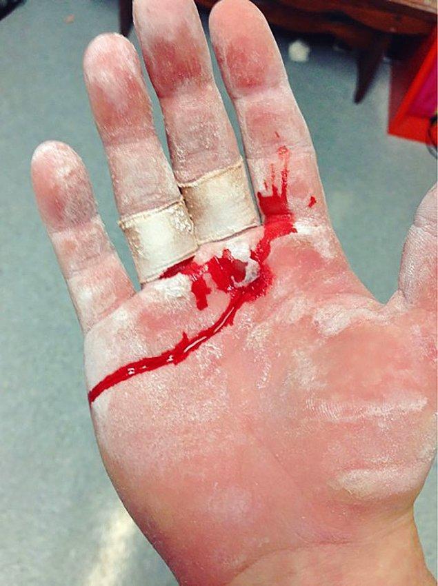 28. Antrenman sonrası ellerini paylaşan jimnastikçi Ellie Black: