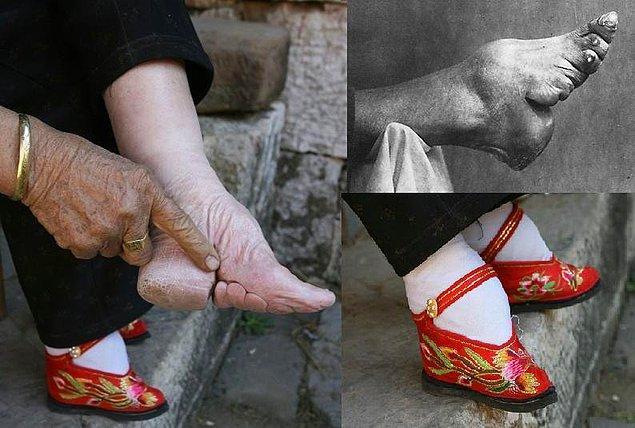 20. Çin'de kadınların ayakları küçülsün diye bağlanması bir gelenekti.