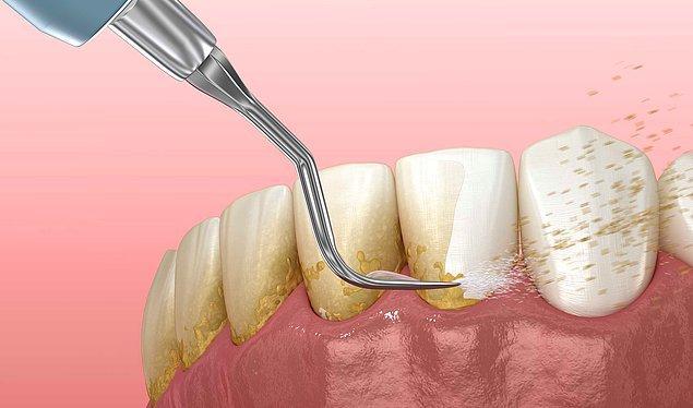 Diş Taşı Nedir?