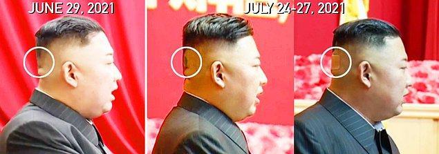 29 Haziran'daki bir politbüro toplantısında o yeşilimsi ize dair herhangi bir şey yoktu. Kim'in 11 Temmuz'da müzisyenlerle yaptığı bir etkinlikten yayınlanan fotoğrafları kafasının arkasını göstermedi.