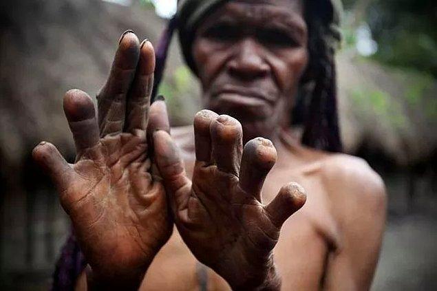 9. Endonezya'da aile üyesi öldüğünde parmağın bir kısmı kesiliyor.