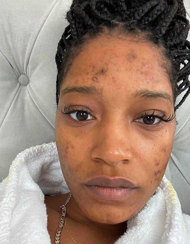 15. Keke Palmer'ın polikistik over sendromu (PCOS) ile ilgili deneyimini ve bunun cildini nasıl etkilediğini takipçileriyle paylaşması: