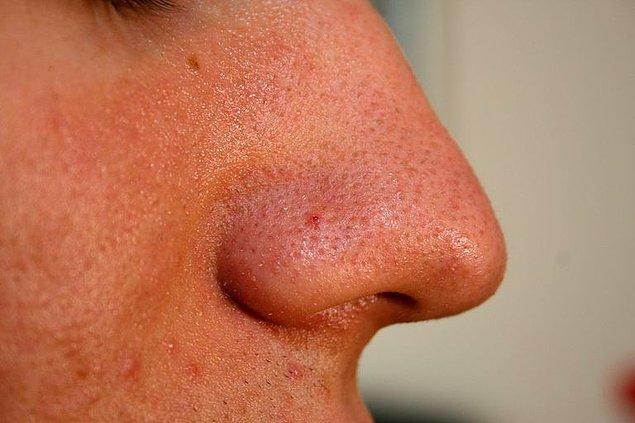 7. Sivilce cildin herhangi bir yerinde oluşabilir ve patladıktan sonra çevre dokulara yayılabilir. Siyah noktalar genelde burun çevresi ve çene gibi cildin daha yağlı bölgelerinde ortaya çıkar.