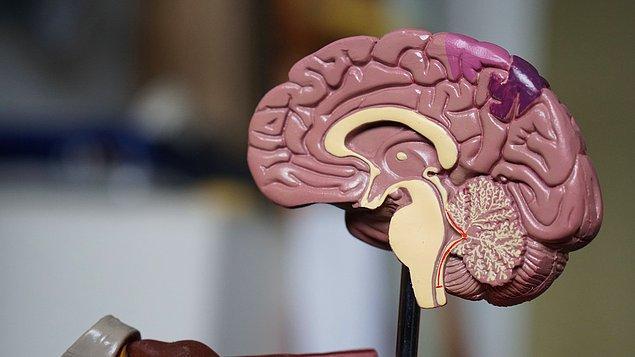 11. Bir beyni doğal haliyle ele almaya çalışırsanız dağılacaktır.